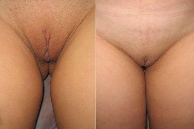 суровые коррекция малых губ фото до и после кастеллан комбинировала